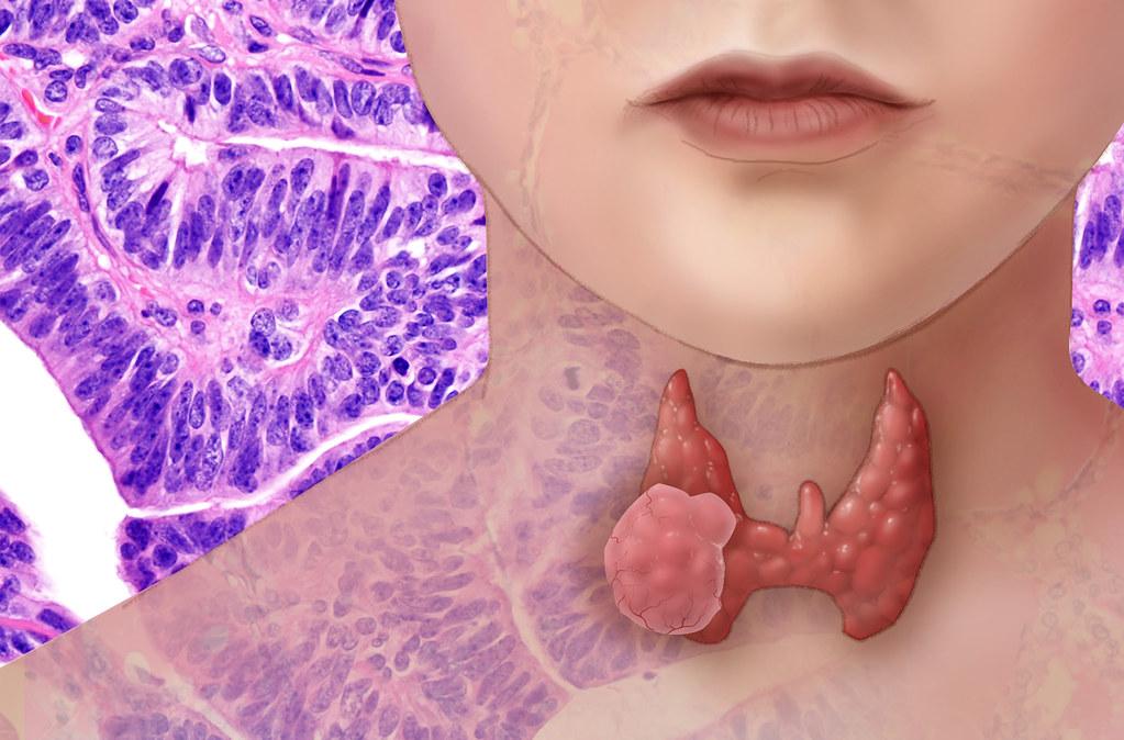 Graves disease Hyperthyroidism Autoimmune thyroid disease